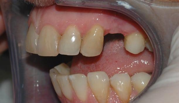 Bildet viser en pasient som mangler en tann i overkjeven. Ettersom nabotennene er uten fyllinger, egner tilfellet seg godt for implantatbehandling.