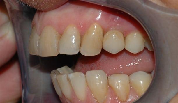 Den nye kronen er ferdig sementert. Form og farge passer fint inn med de andre tennene.
